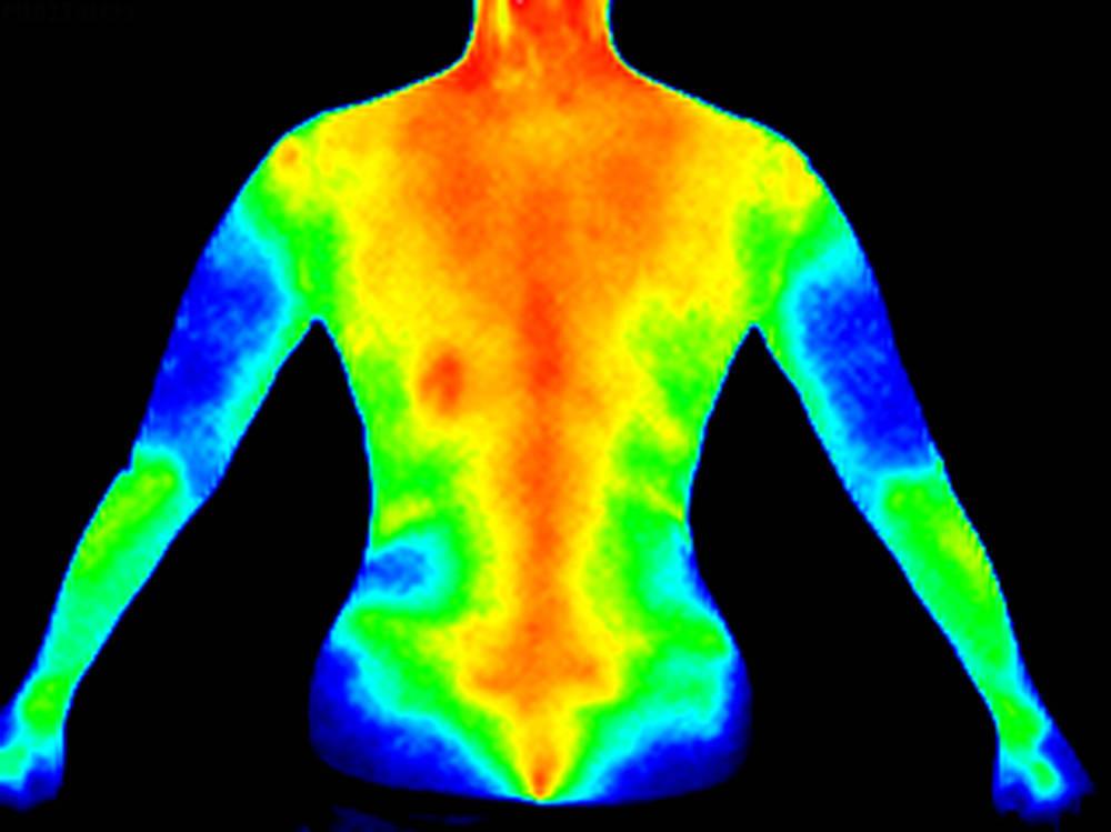 Una cámara termográfica que te indica tus dolores